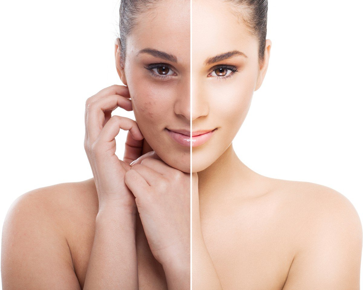 What is Dermapen device? How it works and how to use it?